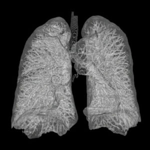 Thorax_Lung_3d_from_ct_scans